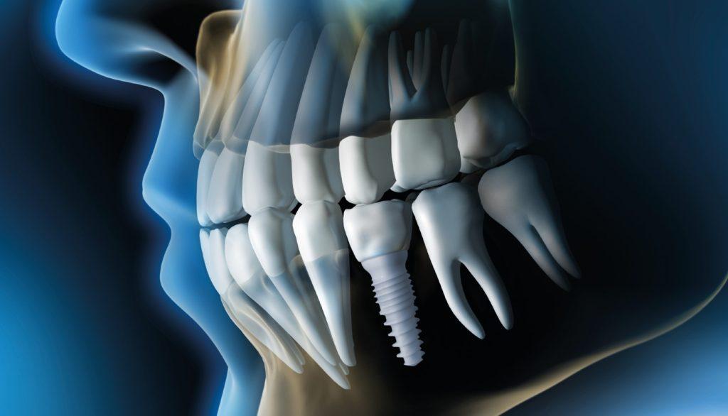 Zirconia Dental Implants Las Vegas, NV